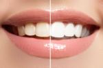Dunkle und helle Zähne nach Behandlung im Vergleich
